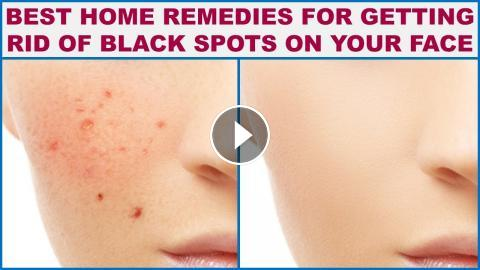 Best Home Remedies For Getting Rid Of Black Spots on Your